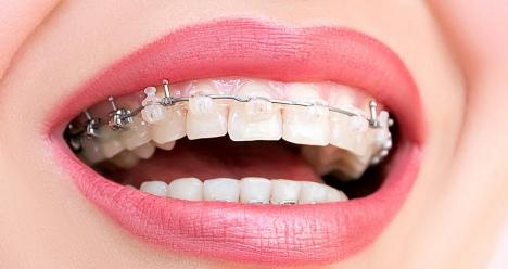 Ровные, белые и здоровые зубы