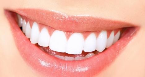 Ровные красивые зубы