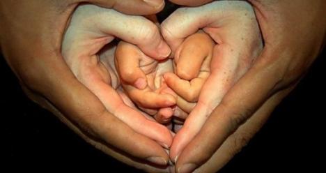 рождение здоровых красивых двойняшек: мальчика и девочки